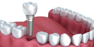 Illustration of how dental implants work.